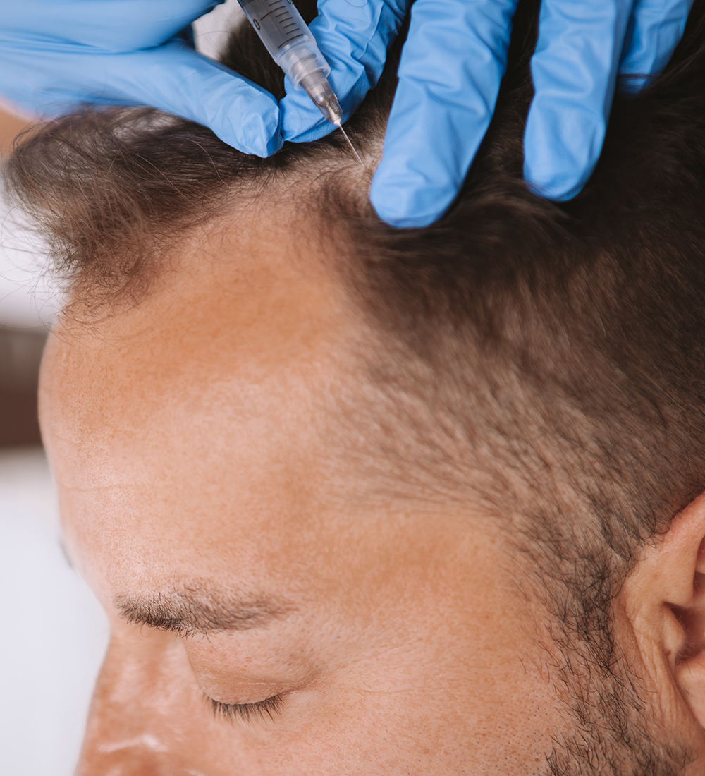 Hair Restoration with Platelet Rich Plasma